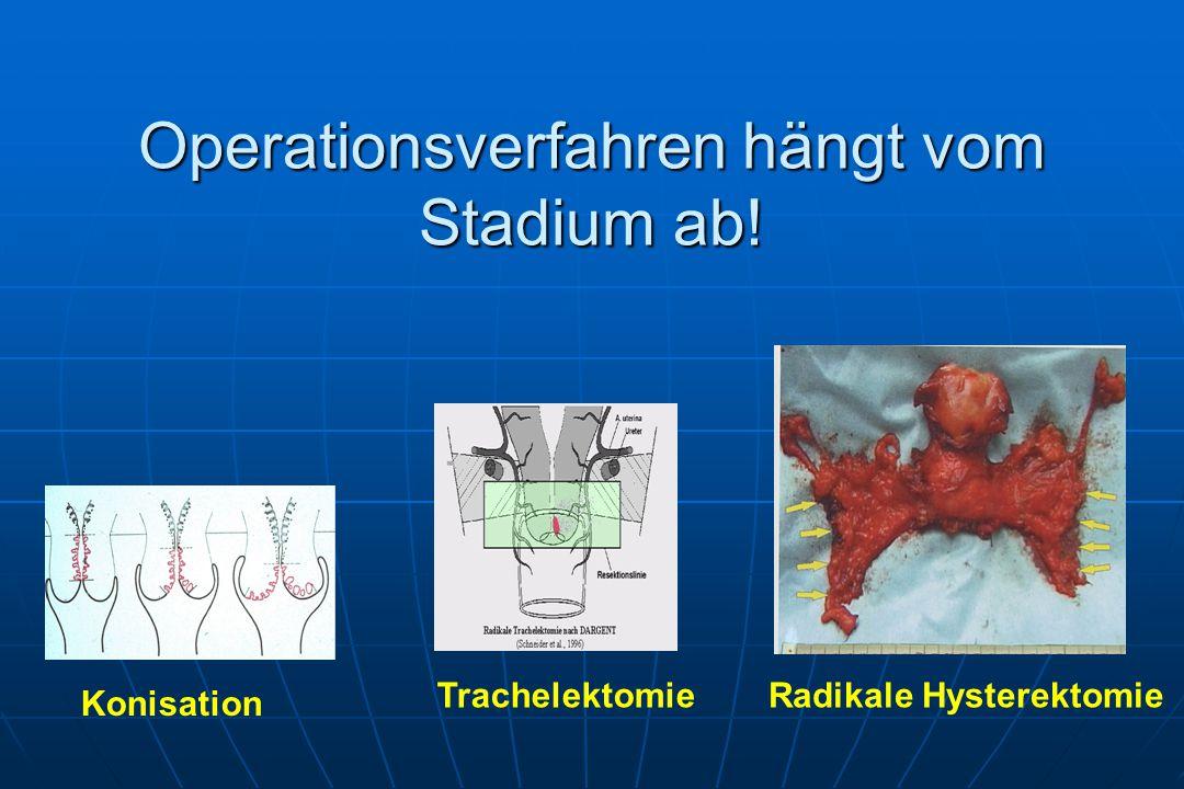 Operationsverfahren hängt vom Stadium ab! Konisation TrachelektomieRadikale Hysterektomie