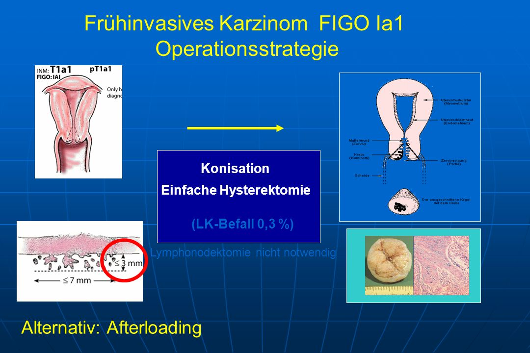 Konisation Einfache Hysterektomie Frühinvasives Karzinom FIGO Ia1 Operationsstrategie (LK-Befall 0,3 %) Lymphonodektomie nicht notwendig Alternativ: Afterloading
