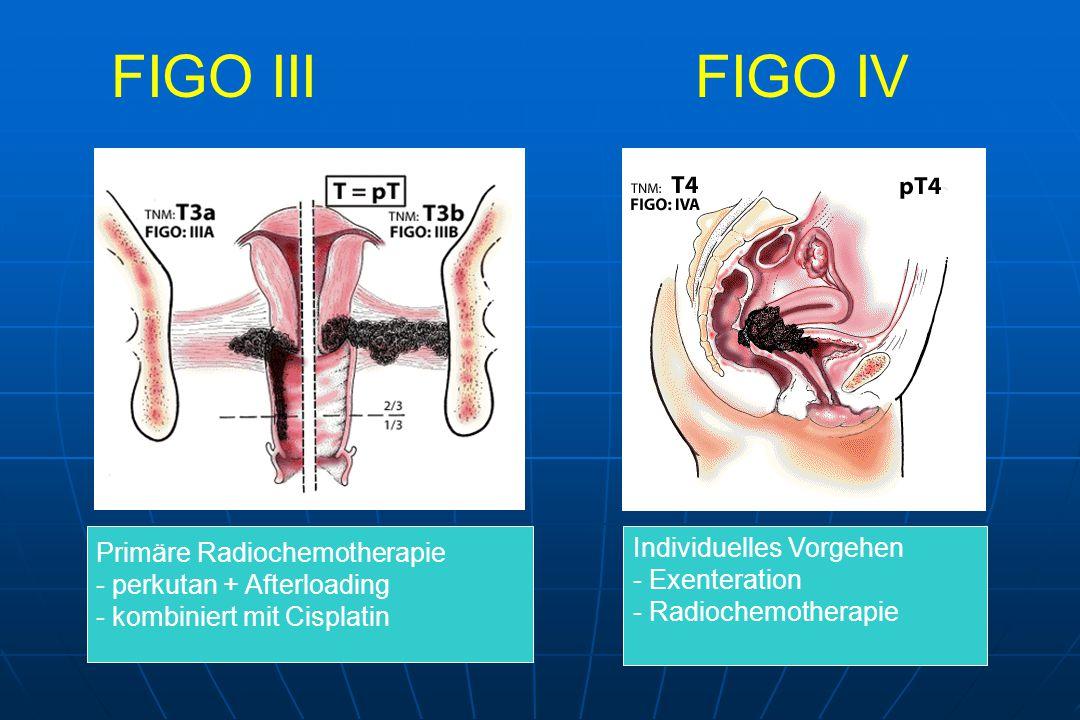 FIGO III FIGO IV Primäre Radiochemotherapie - perkutan + Afterloading - kombiniert mit Cisplatin Individuelles Vorgehen - Exenteration - Radiochemotherapie