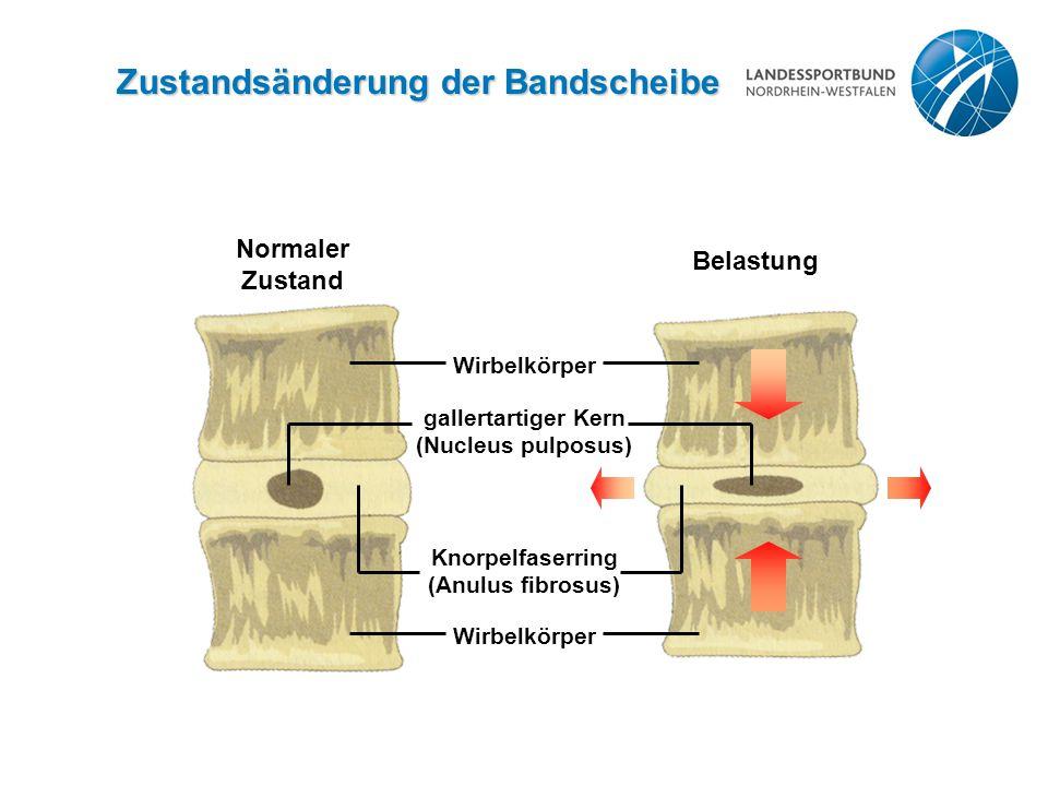 Zustandsänderung der Bandscheibe Normaler Zustand Belastung Wirbelkörper Knorpelfaserring (Anulus fibrosus) gallertartiger Kern (Nucleus pulposus) Wirbelkörper