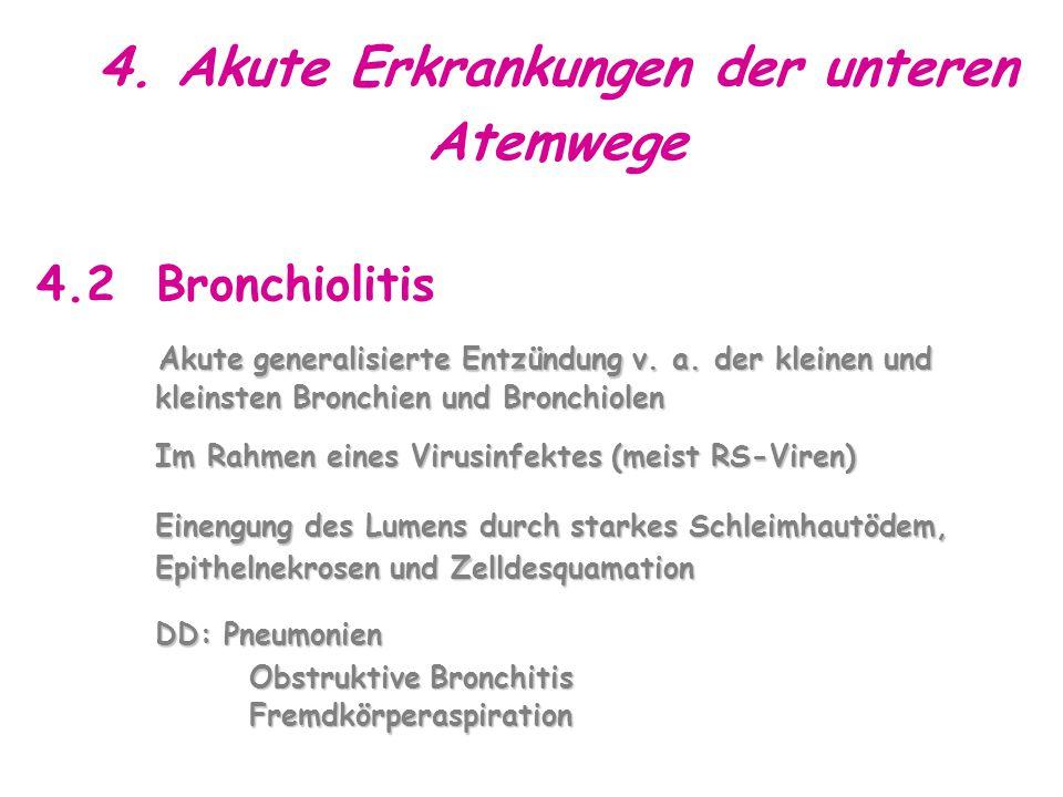 4.Akute Erkrankungen der unteren Atemwege 4.2 Bronchiolitis Akute generalisierte Entzündung v.