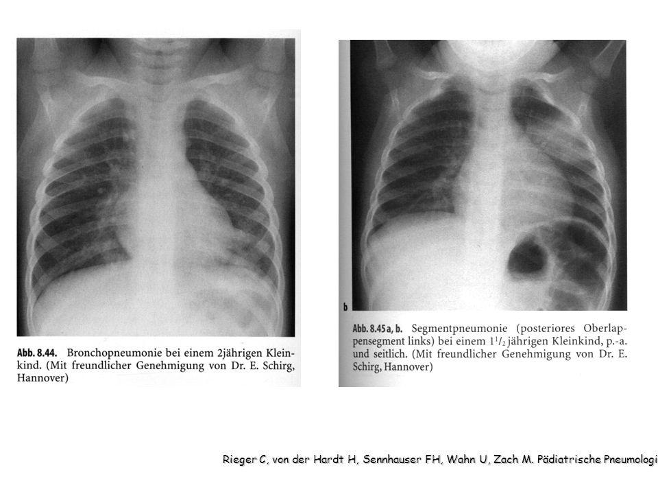 Rieger C, von der Hardt H, Sennhauser FH, Wahn U, Zach M. Pädiatrische Pneumologie