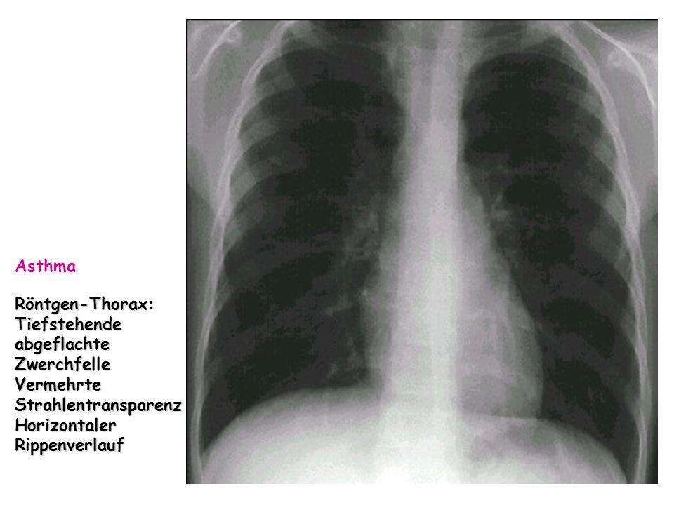 Röntgen-Thorax: Tiefstehende abgeflachte Zwerchfelle Vermehrte Strahlentransparenz Horizontaler Rippenverlauf Asthma