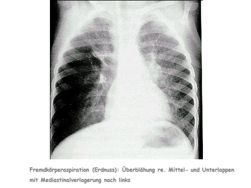 Fremdkörperaspiration (Erdnuss): Überblähung re.