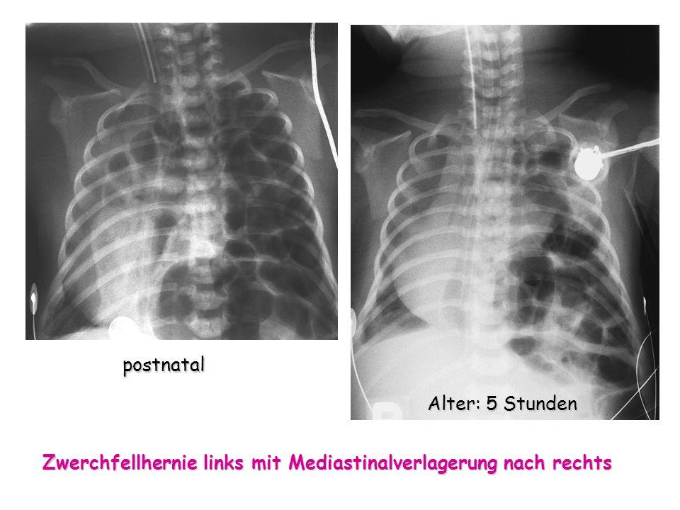 Zwerchfellhernie links mit Mediastinalverlagerung nach rechts Alter: 5 Stunden postnatal