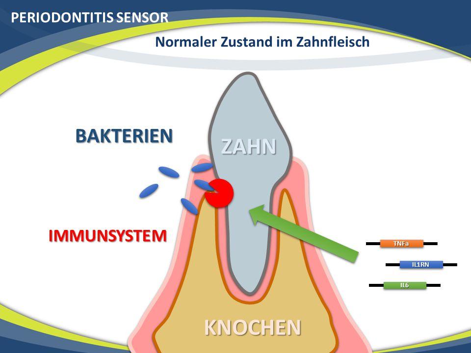 PERIODONTITIS SENSOR Normaler Zustand im Zahnfleisch ZAHN KNOCHEN BAKTERIEN IMMUNSYSTEMTNFa IL1RN IL6