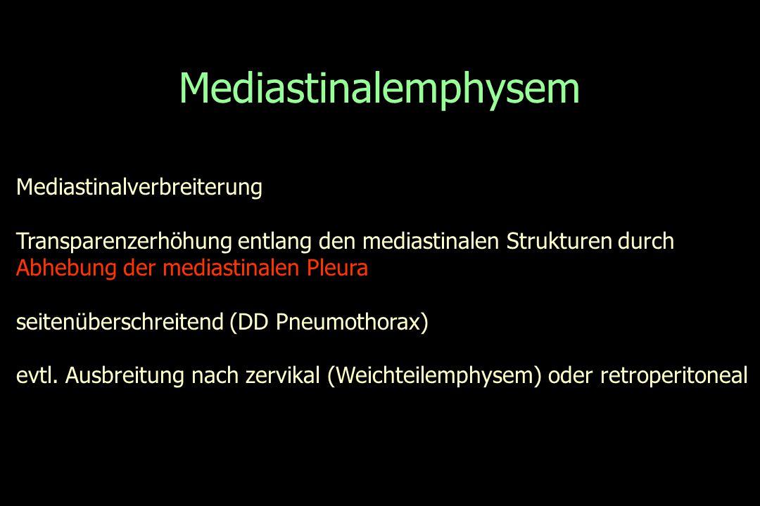 Mediastinalemphysem Mediastinalverbreiterung Transparenzerhöhung entlang den mediastinalen Strukturen durch Abhebung der mediastinalen Pleura seitenüb