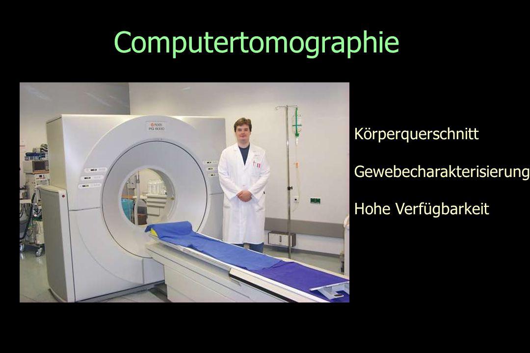 Computertomographie Körperquerschnitt Gewebecharakterisierung Hohe Verfügbarkeit