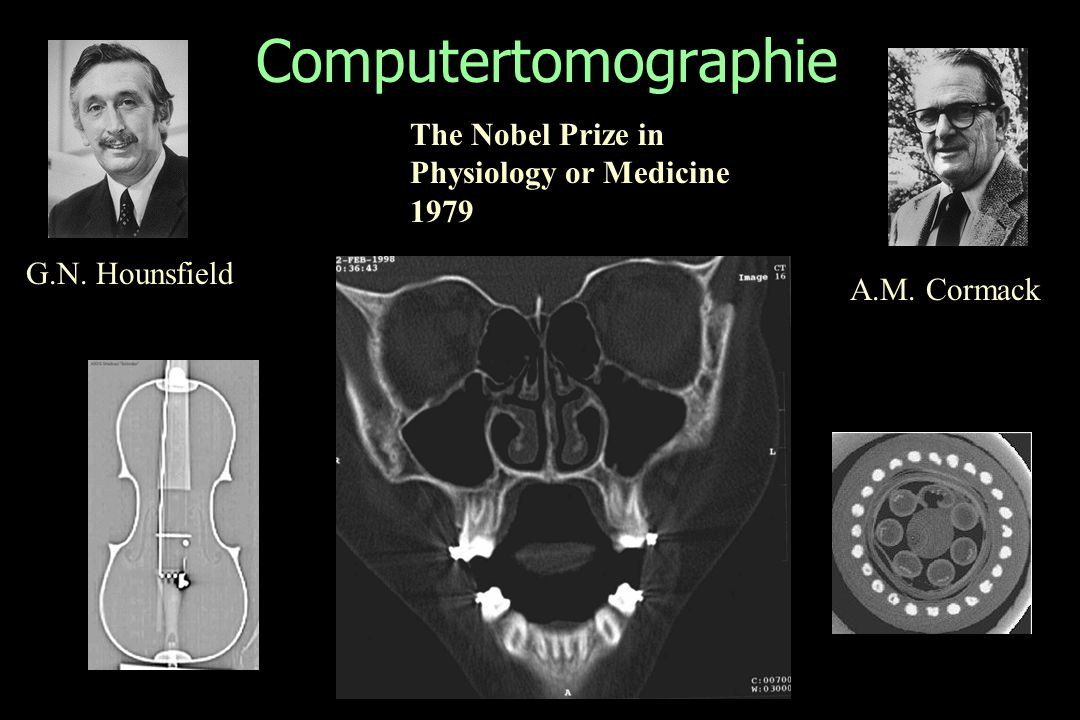 Computertomographie G.N. Hounsfield A.M. Cormack The Nobel Prize in Physiology or Medicine 1979