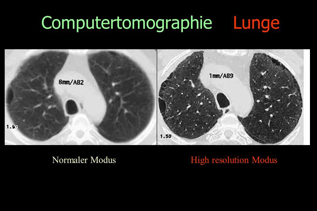 Computertomographie Lunge Normaler ModusHigh resolution Modus