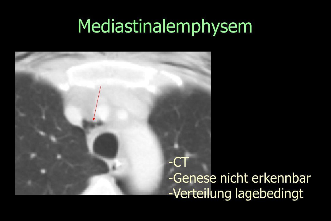 Mediastinalemphysem -CT -Genese nicht erkennbar -Verteilung lagebedingt