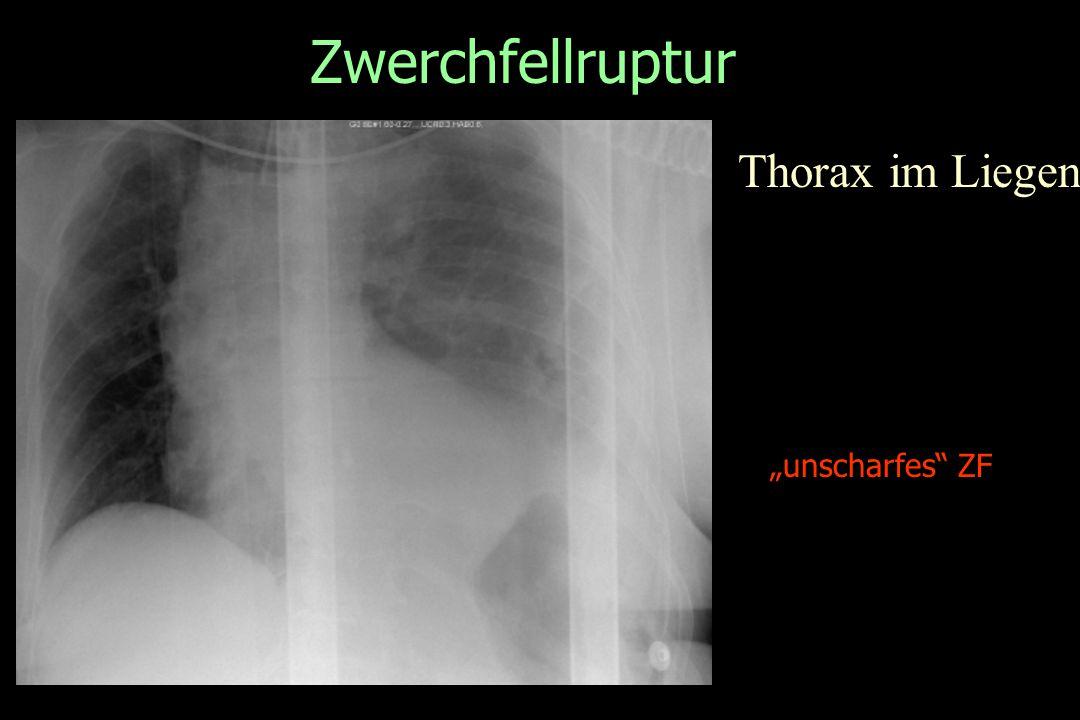 "Zwerchfellruptur Thorax im Liegen ""unscharfes"" ZF"