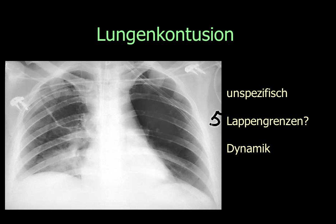 Lungenkontusion unspezifisch Lappengrenzen? Dynamik