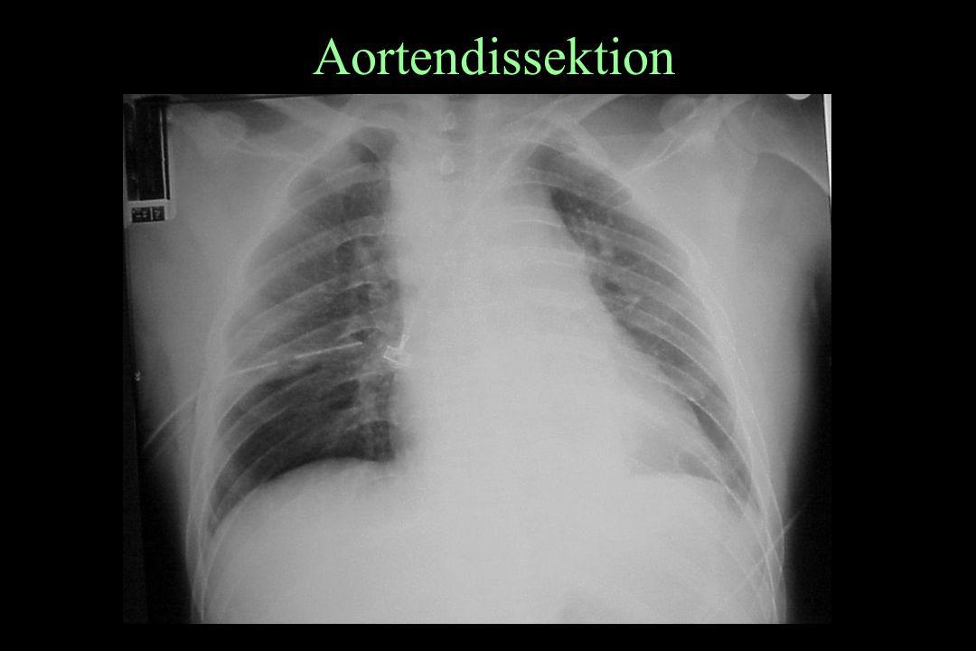 Aortendissektion