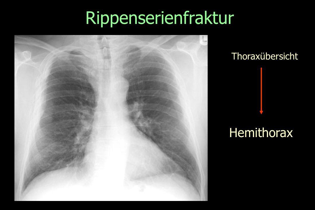 Rippenserienfraktur Thoraxübersicht Hemithorax