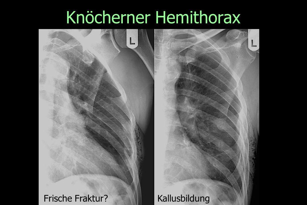 Knöcherner Hemithorax Frische Fraktur?Kallusbildung