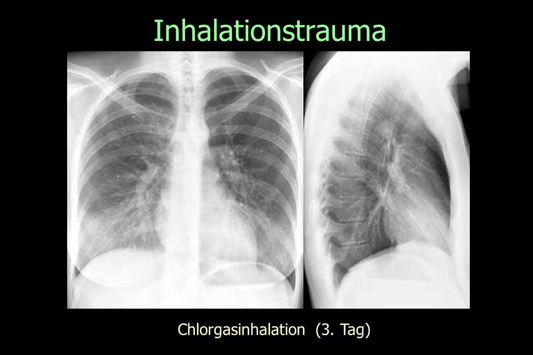 Inhalationstrauma Chlorgasinhalation (3. Tag)