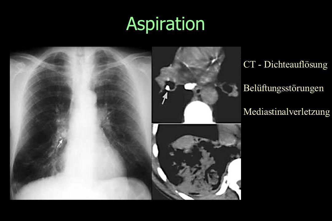 Aspiration CT - Dichteauflösung Belüftungsstörungen Mediastinalverletzung