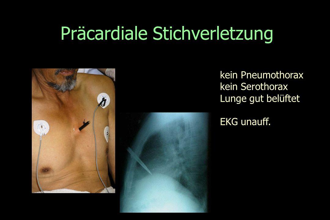 Präcardiale Stichverletzung kein Pneumothorax kein Serothorax Lunge gut belüftet EKG unauff.
