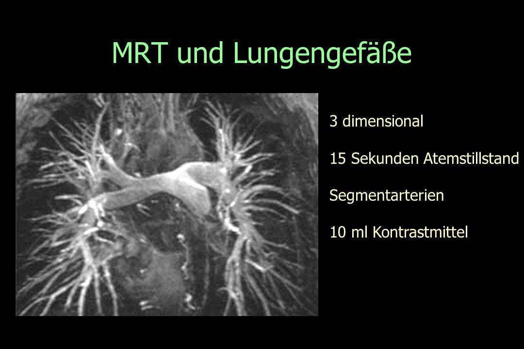 MRT und Lungengefäße 3 dimensional 15 Sekunden Atemstillstand Segmentarterien 10 ml Kontrastmittel