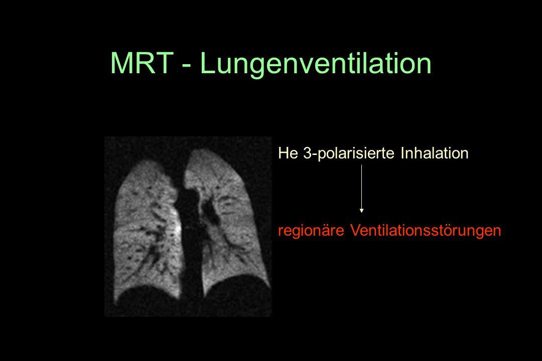MRT - Lungenventilation He 3-polarisierte Inhalation regionäre Ventilationsstörungen