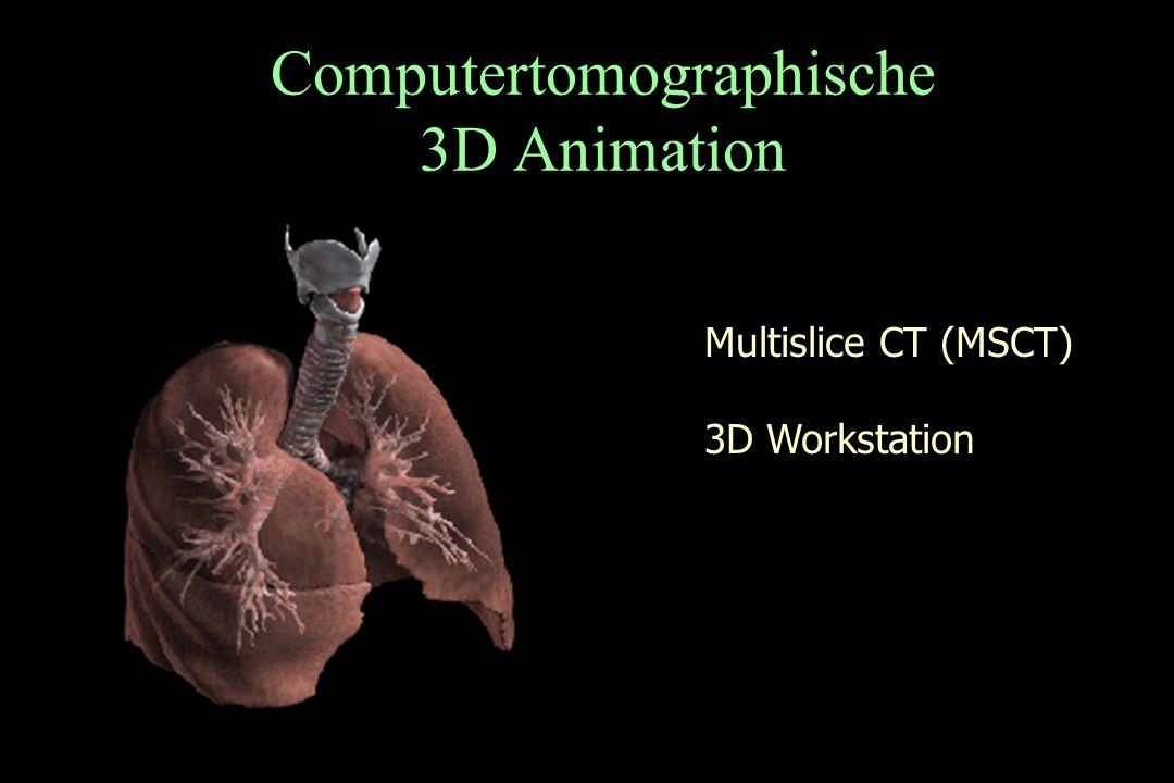 Computertomographische 3D Animation Multislice CT (MSCT) 3D Workstation