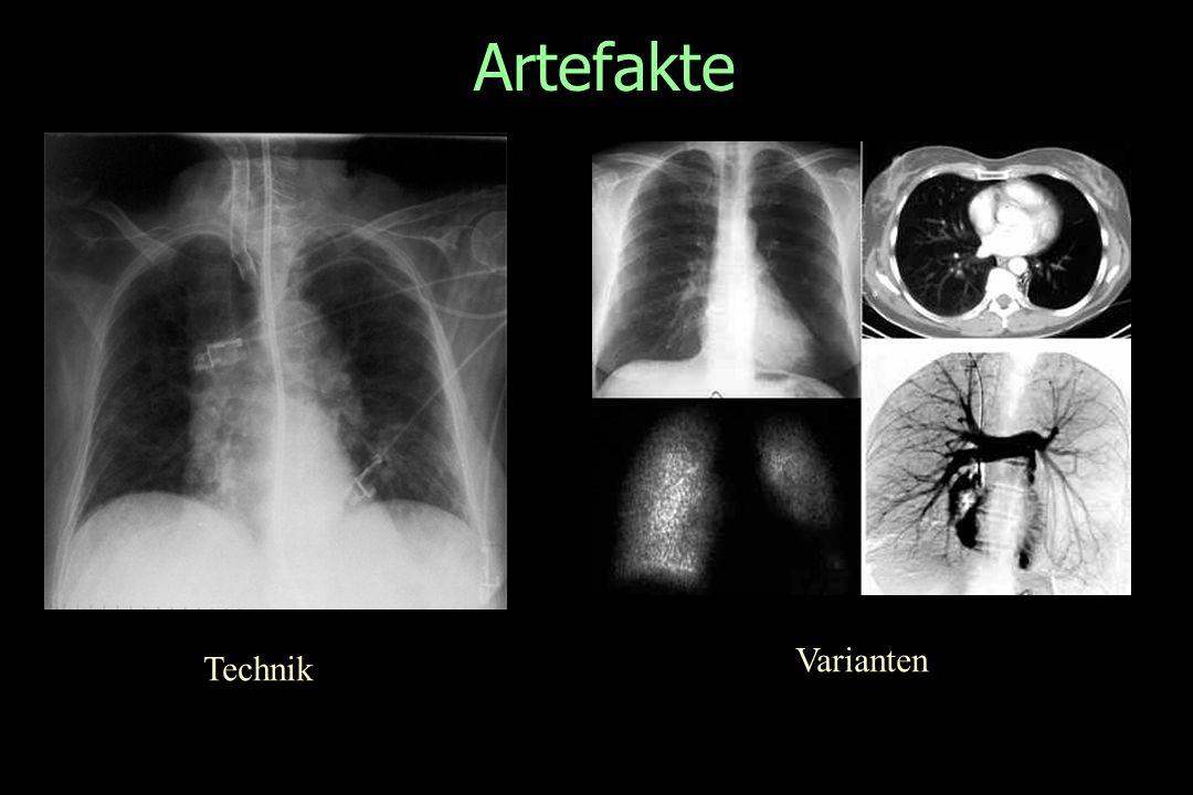 Artefakte Technik Varianten