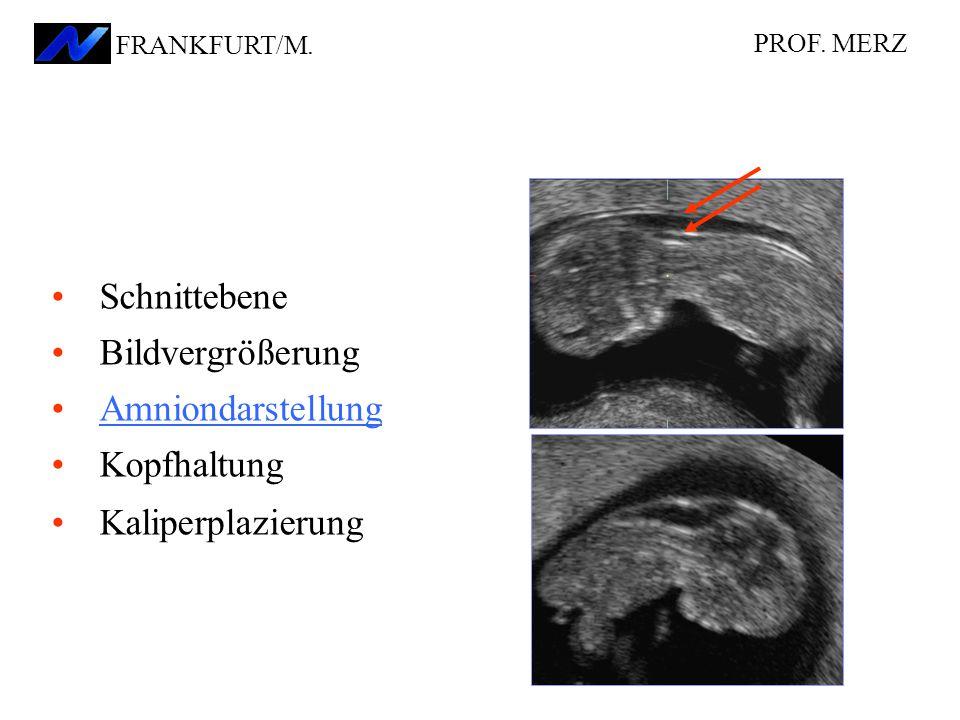 Schnittebene Bildvergrößerung Amniondarstellung Kopfhaltung Kaliperplazierung PROF.
