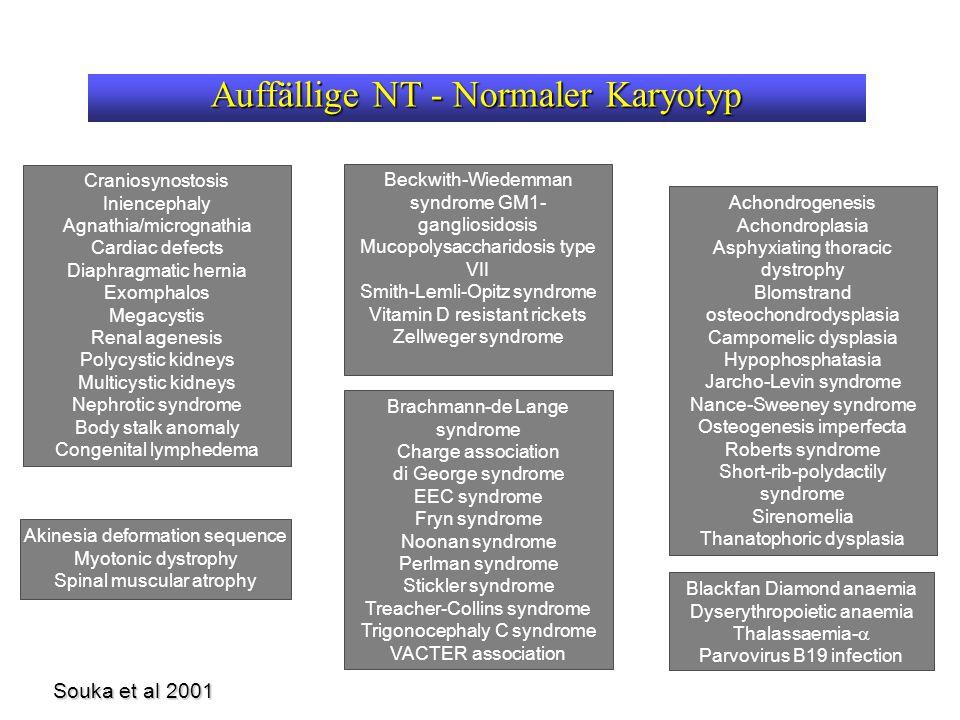 Auffällige NT - Normaler Karyotyp Souka et al 2001 Achondrogenesis Achondroplasia Asphyxiating thoracic dystrophy Blomstrand osteochondrodysplasia Campomelic dysplasia Hypophosphatasia Jarcho-Levin syndrome Nance-Sweeney syndrome Osteogenesis imperfecta Roberts syndrome Short-rib-polydactily syndrome Sirenomelia Thanatophoric dysplasia Craniosynostosis Iniencephaly Agnathia/micrognathia Cardiac defects Diaphragmatic hernia Exomphalos Megacystis Renal agenesis Polycystic kidneys Multicystic kidneys Nephrotic syndrome Body stalk anomaly Congenital lymphedema Akinesia deformation sequence Myotonic dystrophy Spinal muscular atrophy Beckwith-Wiedemman syndrome GM1- gangliosidosis Mucopolysaccharidosis type VII Smith-Lemli-Opitz syndrome Vitamin D resistant rickets Zellweger syndrome Blackfan Diamond anaemia Dyserythropoietic anaemia Thalassaemia-  Parvovirus B19 infection Brachmann-de Lange syndrome Charge association di George syndrome EEC syndrome Fryn syndrome Noonan syndrome Perlman syndrome Stickler syndrome Treacher-Collins syndrome Trigonocephaly C syndrome VACTER association