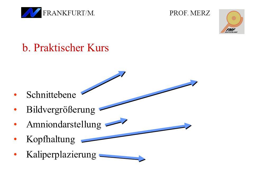 Schnittebene Bildvergrößerung Amniondarstellung Kopfhaltung Kaliperplazierung b.