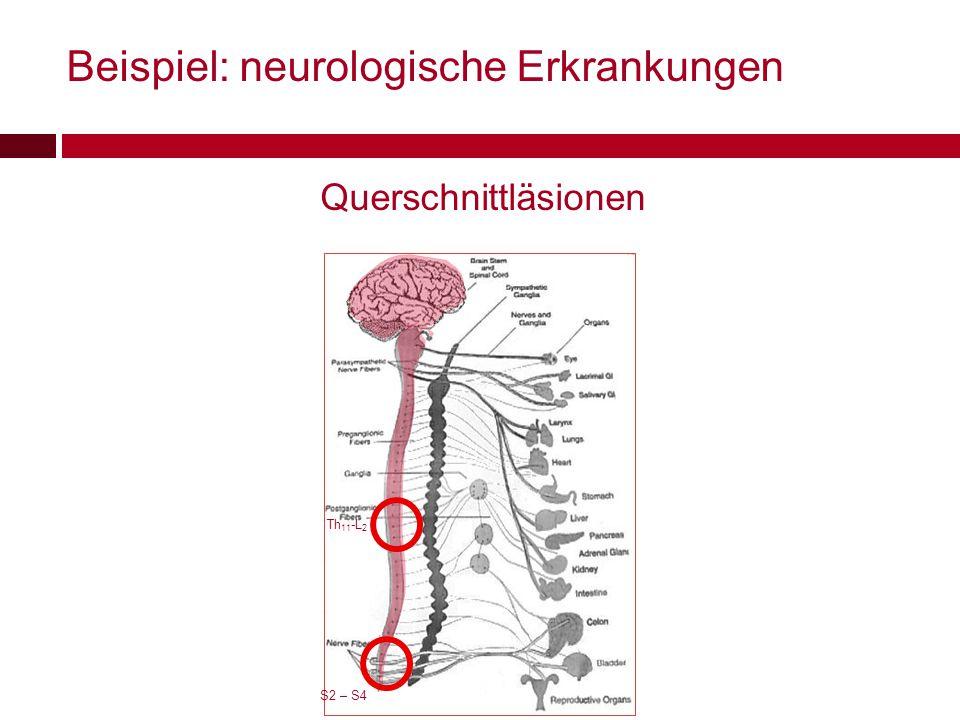 Querschnittläsionen Th 11 -L 2 S2 – S4 Beispiel: neurologische Erkrankungen