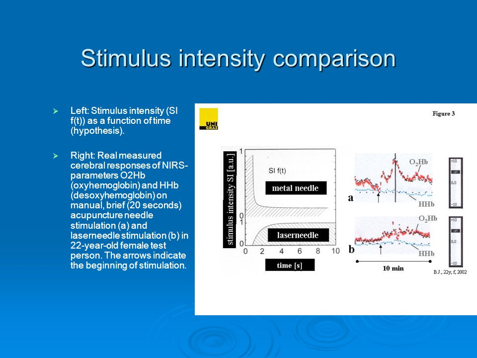 Stimulus intensity comparison   Left: Stimulus intensity (SI f(t)) as a function of time (hypothesis).   Right: Real measured cerebral responses o