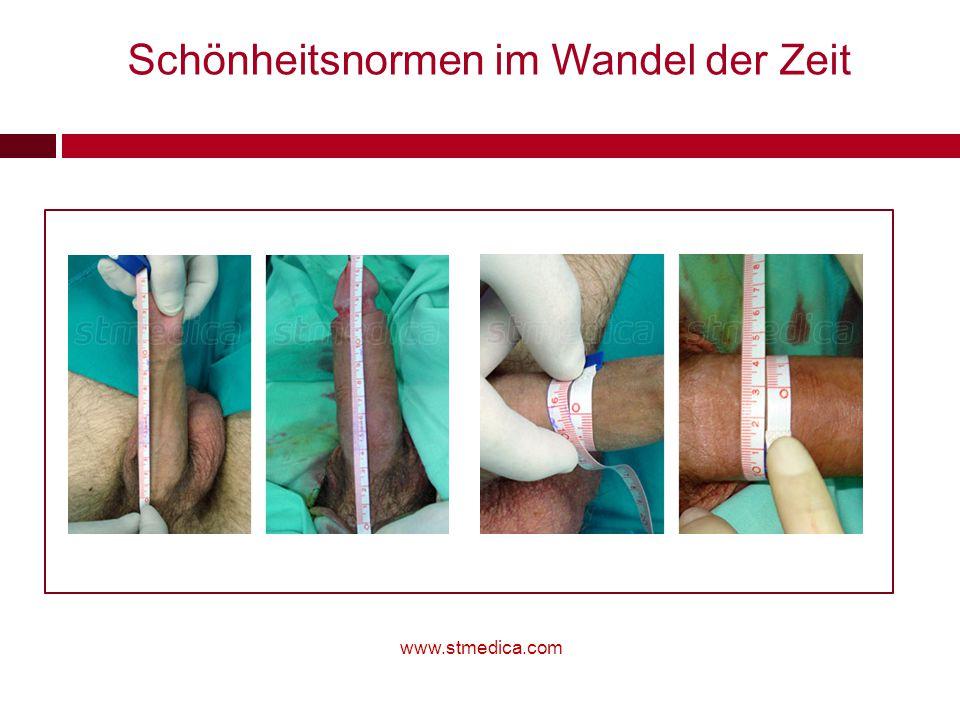 www.stmedica.com Schönheitsnormen im Wandel der Zeit