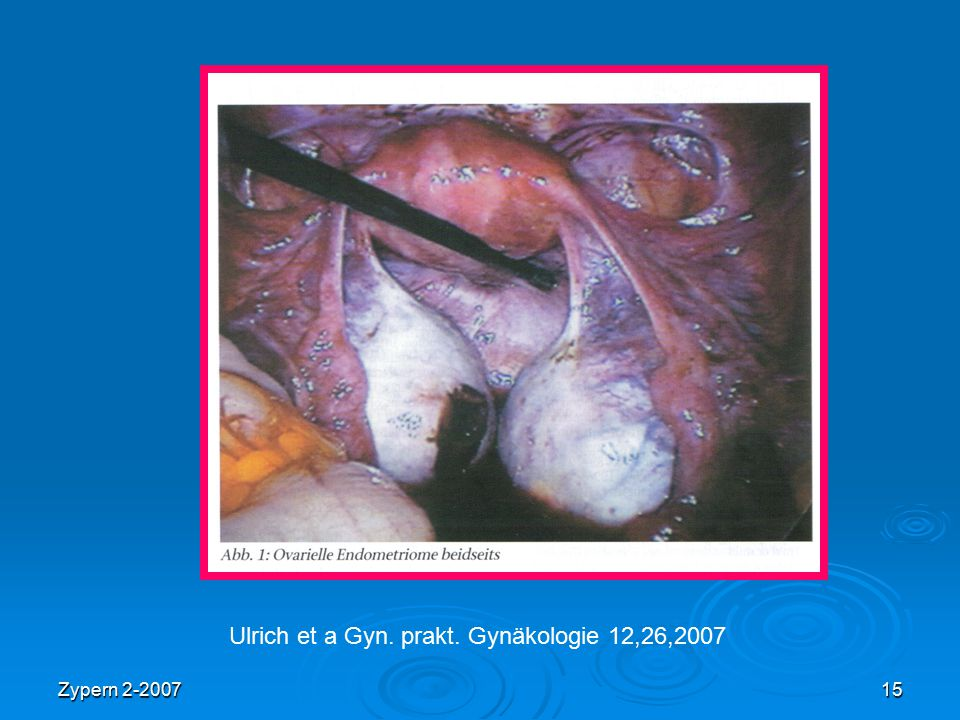 Zypern 2-200715 Ulrich et a Gyn. prakt. Gynäkologie 12,26,2007