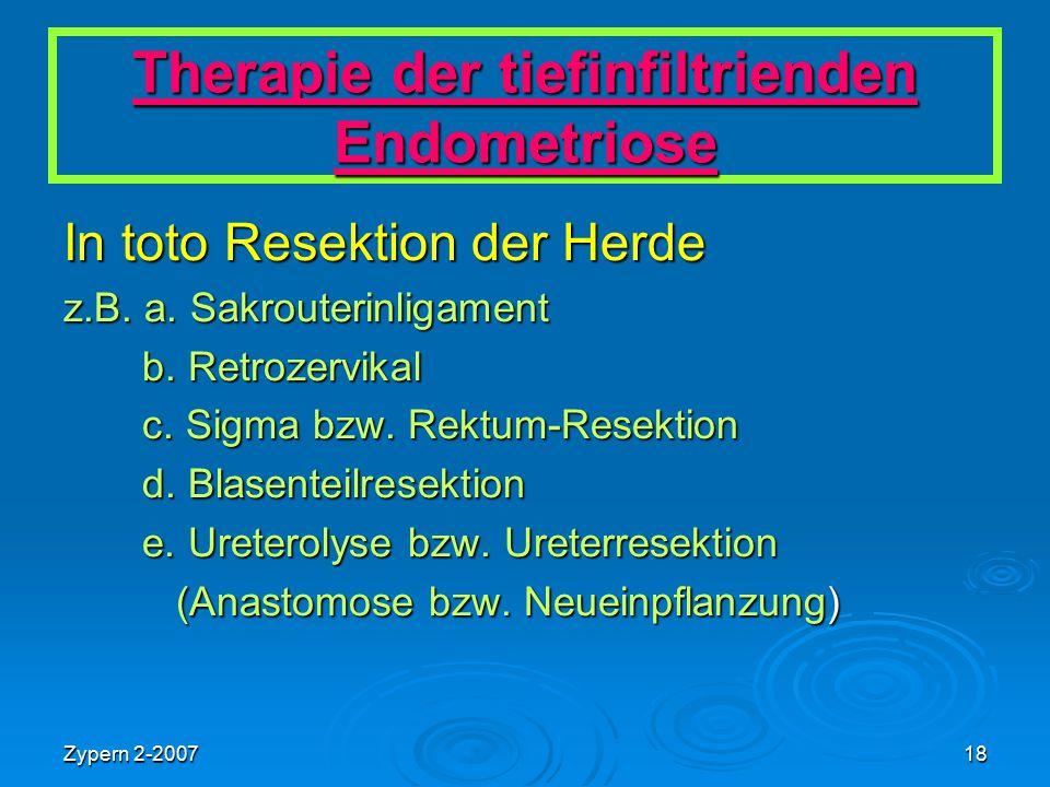Zypern 2-200718 Therapie der tiefinfiltrienden Endometriose In toto Resektion der Herde z.B. a. Sakrouterinligament b. Retrozervikal b. Retrozervikal