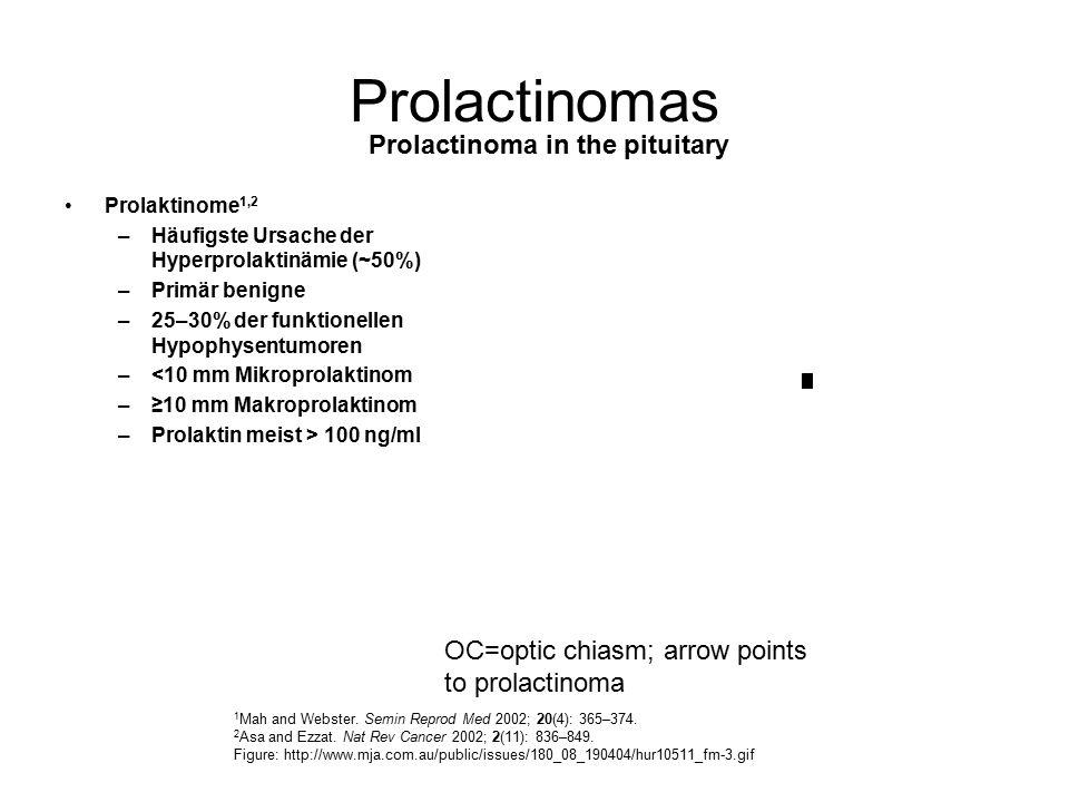 Prolactinomas Prolaktinome 1,2 –Häufigste Ursache der Hyperprolaktinämie (~50%) –Primär benigne –25–30% der funktionellen Hypophysentumoren –<10 mm Mi