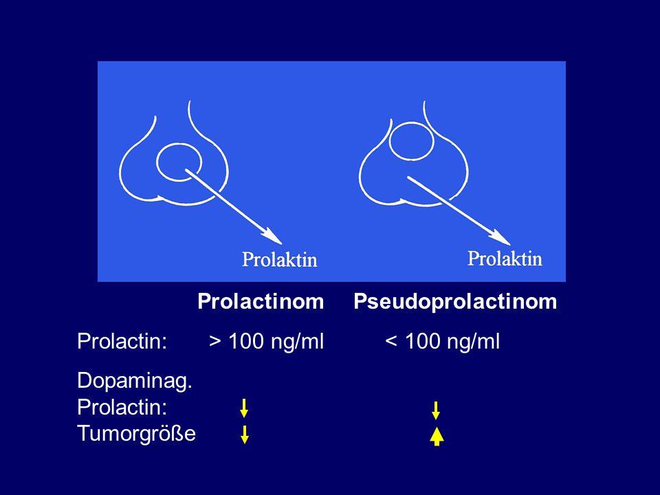Prolactinom Pseudoprolactinom Prolactin: > 100 ng/ml < 100 ng/ml Dopaminag. Prolactin: Tumorgröße