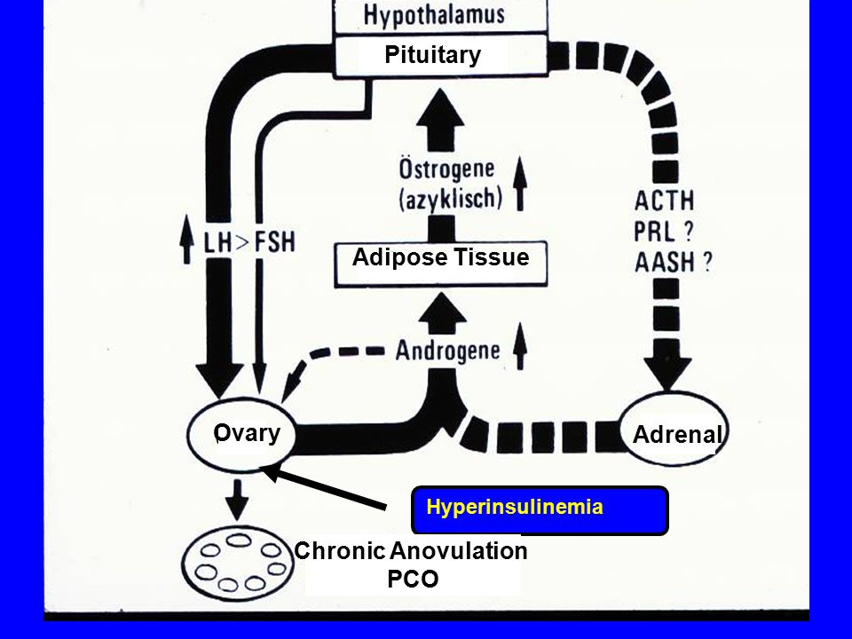 Hyperinsulinemia Chronic Anovulation PCO Ovary Adrenal Adipose Tissue Pituitary