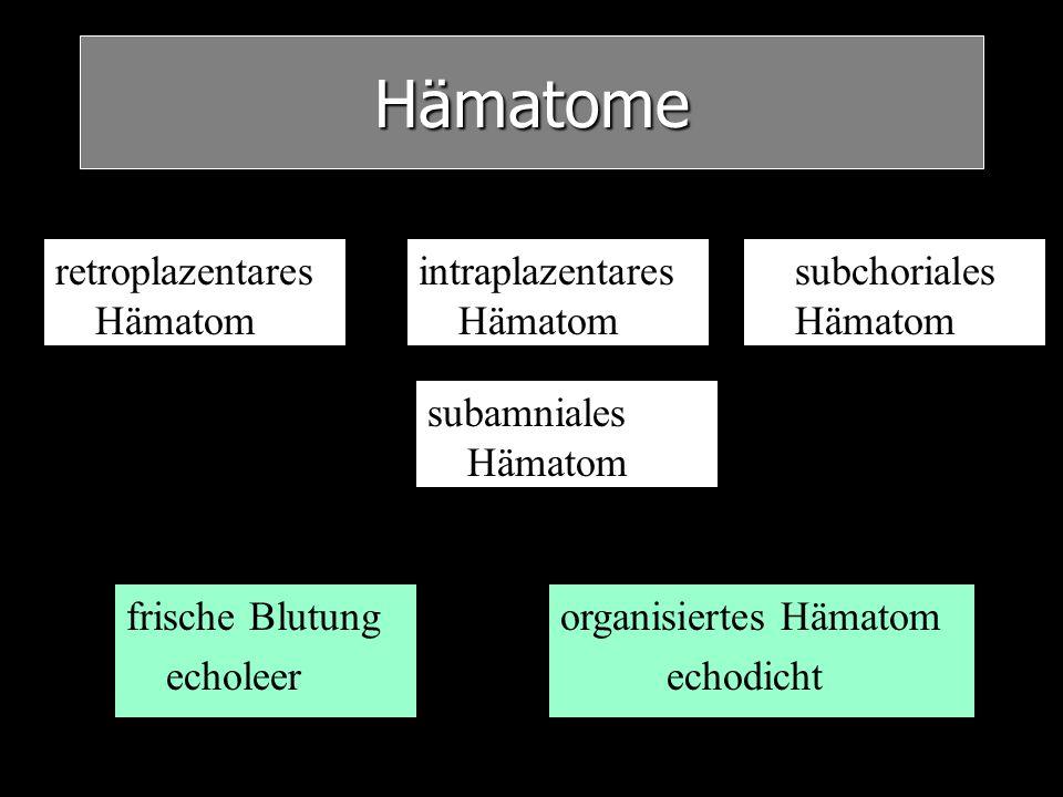Hämatome frische Blutung echoleer organisiertes Hämatom echodicht retroplazentares Hämatom intraplazentares Hämatom subchoriales Hämatom subamniales H