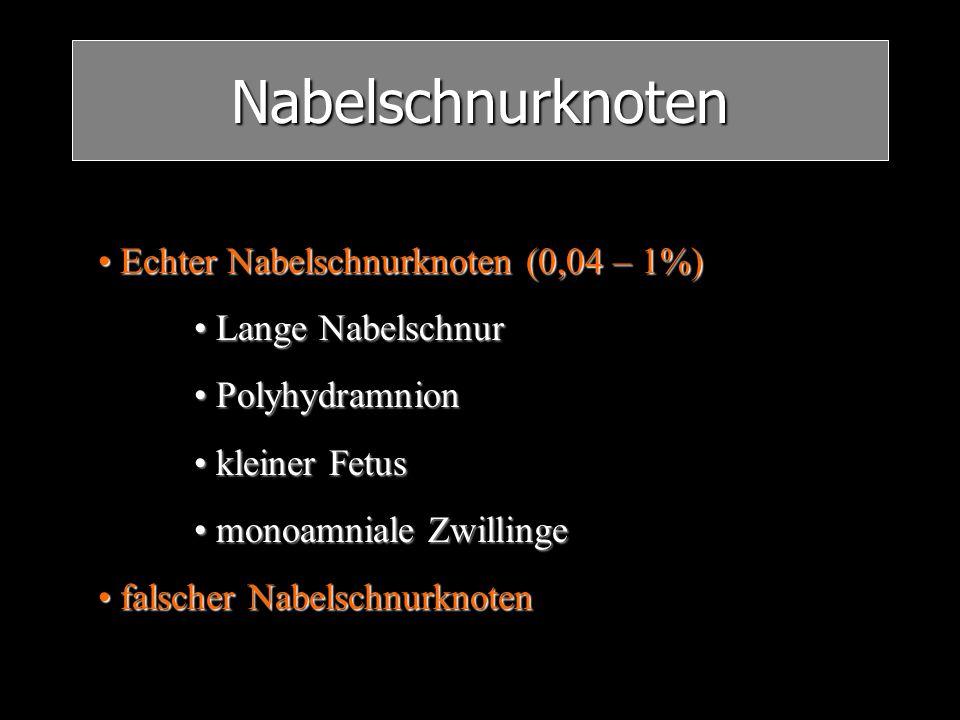 Nabelschnurknoten Echter Nabelschnurknoten (0,04 – 1%) Echter Nabelschnurknoten (0,04 – 1%) Lange Nabelschnur Lange Nabelschnur Polyhydramnion Polyhyd