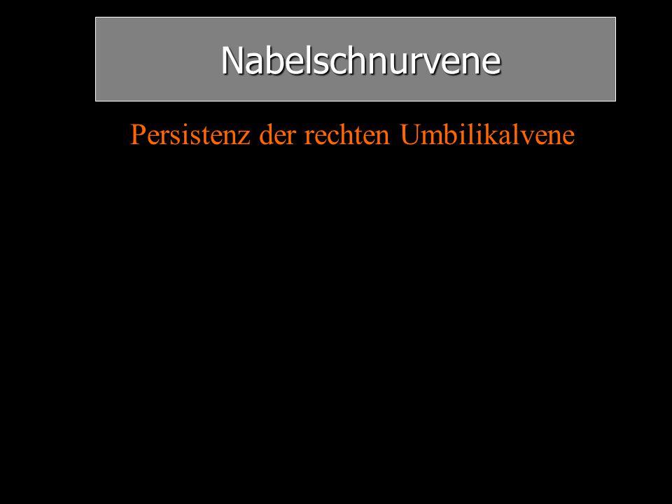 Nabelschnurvene Nabelschnurvene Persistenz der rechten Umbilikalvene