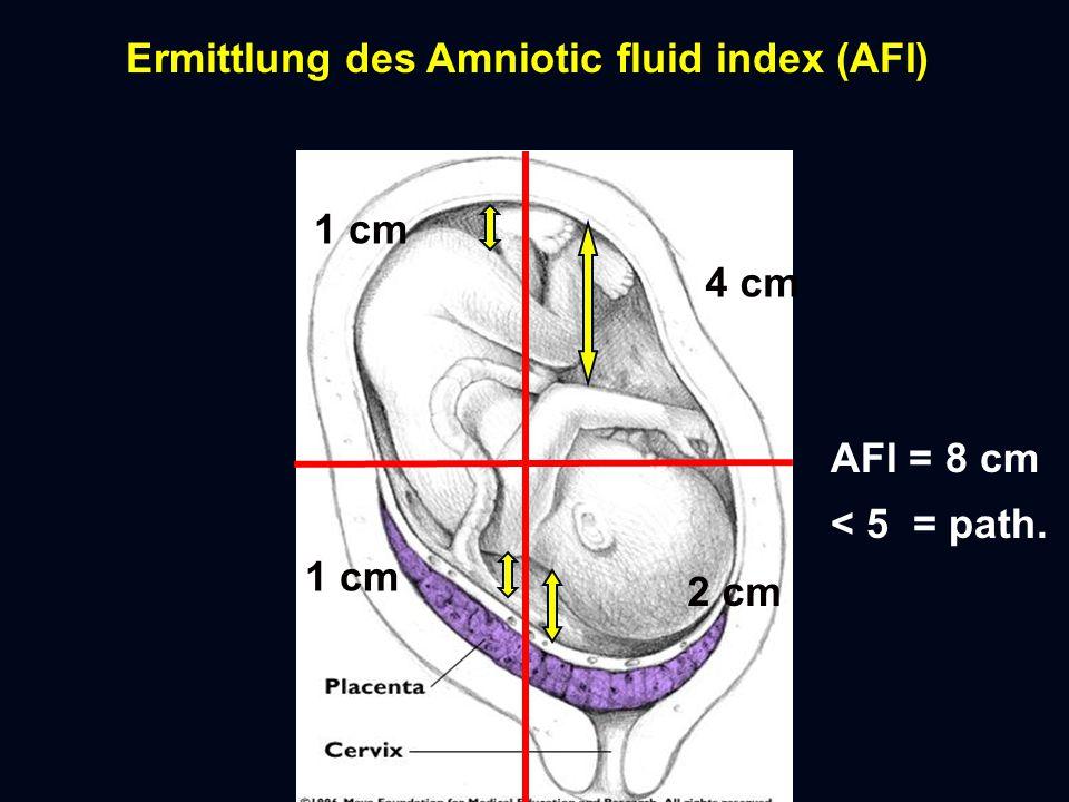 Ermittlung des Amniotic fluid index (AFI) 1 cm 4 cm 1 cm 2 cm AFI = 8 cm < 5 = path.