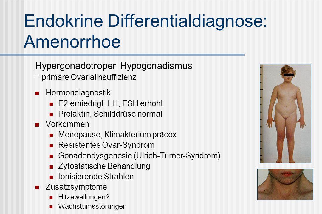 Endokrine Differentialdiagnose: Amenorrhoe Hypergonadotroper Hypogonadismus = primäre Ovarialinsuffizienz Hormondiagnostik E2 erniedrigt, LH, FSH erhöht Prolaktin, Schilddrüse normal Vorkommen Menopause, Klimakterium präcox Resistentes Ovar-Syndrom Gonadendysgenesie (Ulrich-Turner-Syndrom) Zytostatische Behandlung Ionisierende Strahlen Zusatzsymptome Hitzewallungen.