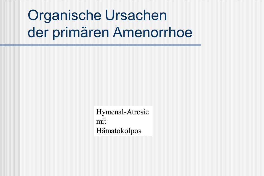 Organische Ursachen der primären Amenorrhoe Hymenal-Atresie mit Hämatokolpos