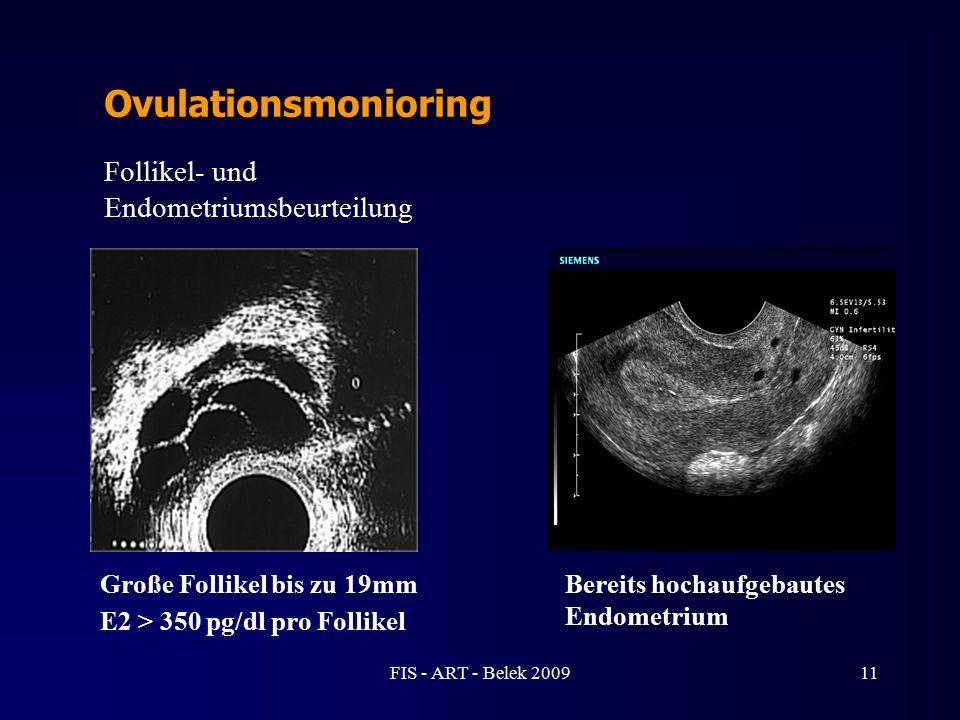 11 Ovulationsmonioring Große Follikel bis zu 19mm E2 > 350 pg/dl pro Follikel Bereits hochaufgebautes Endometrium Follikel- und Endometriumsbeurteilun