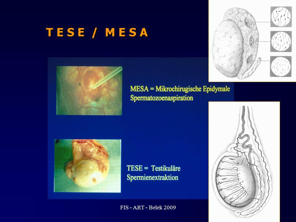 T E S E / M E S A 25FIS - ART - Belek 2009