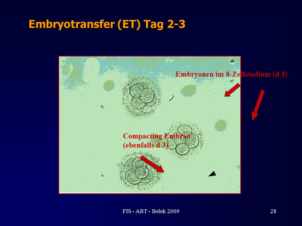 Embryonen im 8-Zellstadium (d 3) Compacting Embryo (ebenfalls d 3) Embryotransfer (ET) Tag 2-3 28FIS - ART - Belek 2009
