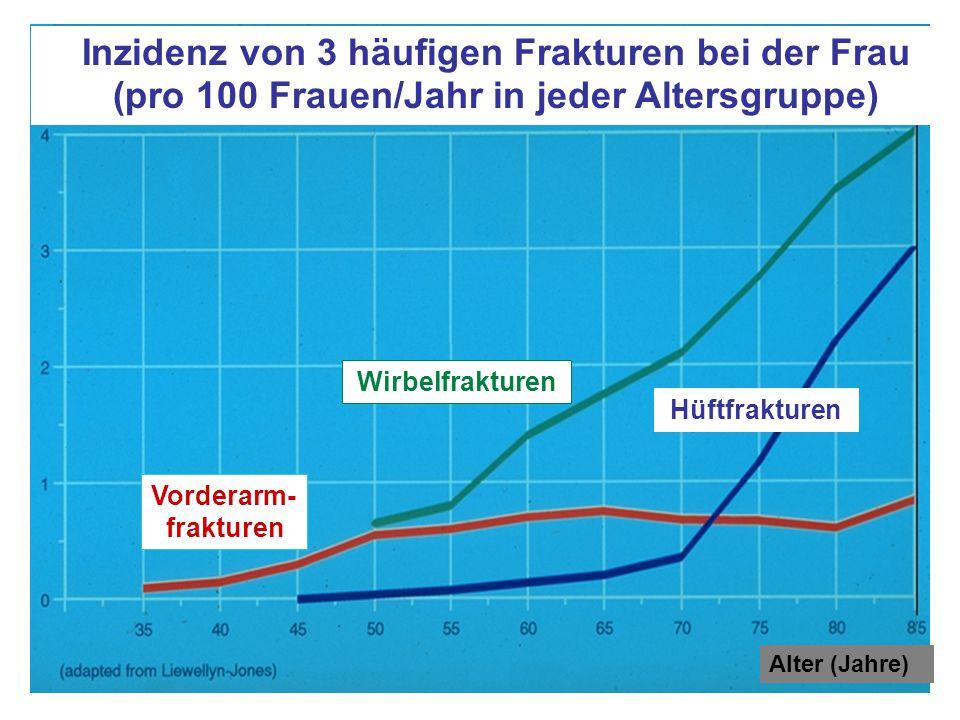 Hüftfrakturen Vorderarm- frakturen Inzidenz von 3 häufigen Frakturen bei der Frau (pro 100 Frauen/Jahr in jeder Altersgruppe) Wirbelfrakturen Alter (Jahre)