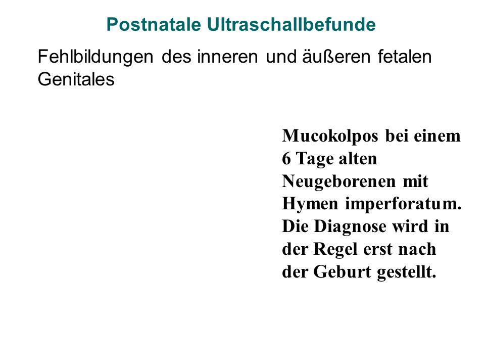 Fehlbildungen des inneren und äußeren fetalen Genitales Mucokolpos bei einem 6 Tage alten Neugeborenen mit Hymen imperforatum. Die Diagnose wird in de