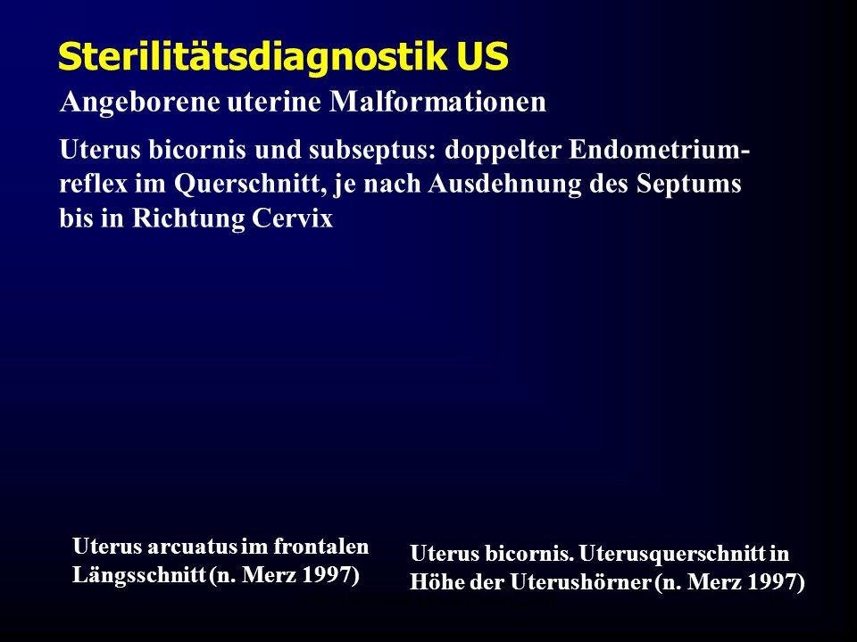 FIS - Hormonell aktuell Zypern 200616 Sterilitätsdiagnostik US Angeborene uterine Malformationen Uterus bicornis und subseptus: doppelter Endometrium- reflex im Querschnitt, je nach Ausdehnung des Septums bis in Richtung Cervix Uterus arcuatus im frontalen Längsschnitt (n.